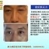 康立康医视防辐射眼镜_治疗青光眼_百分百防辐射